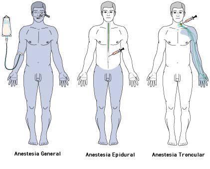 incisión transuretral de la próstata para el tratamiento de la prostatitis hipertrófica benigna códi