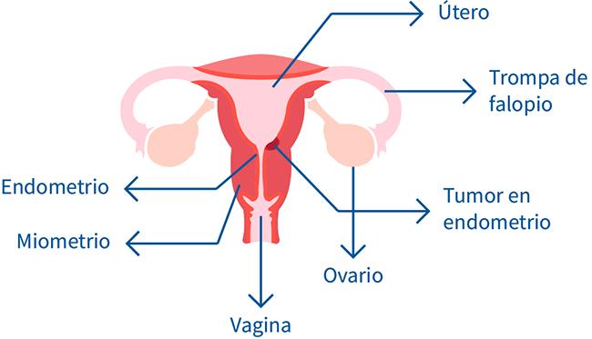 cancer endometrial que es sinonasal papilloma dysplasia