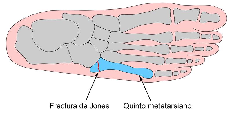 Fractura quinto metatarsiano