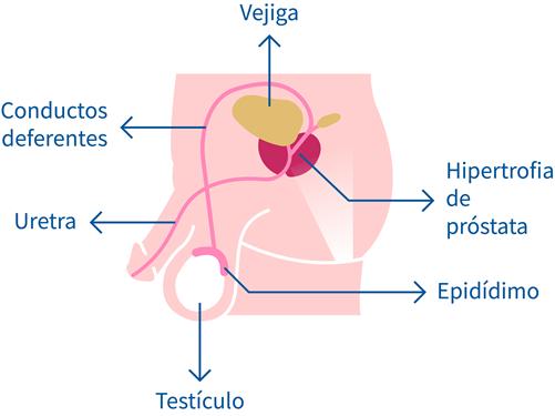 Código icd 10 para la infección por prostatitis
