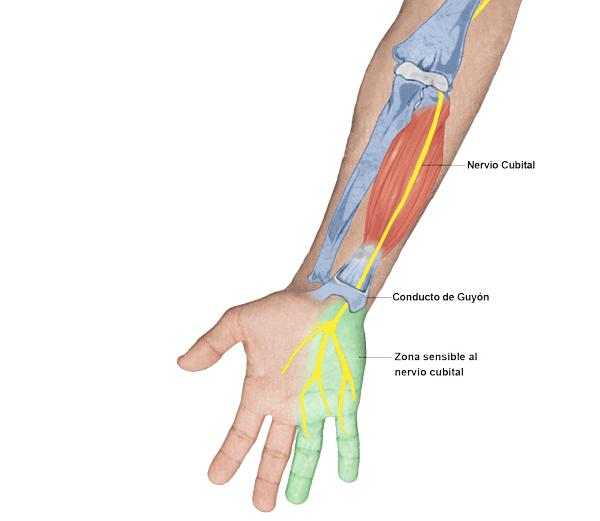 lesion del nervio mediano en la muñeca